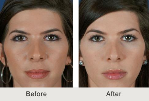 Botox Regenex Med Spa